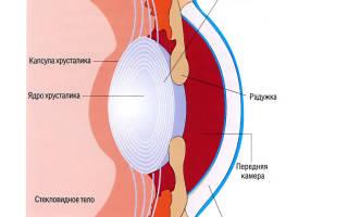 Катаракта: симптомы и лечение, профилактика болезни